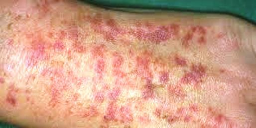 gyomorrák vasculitis