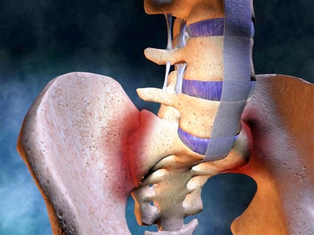 Morbus Bechterew – rygsøjlegigt – årsager, symptomer og behandling