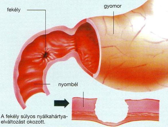 vastagbel daganat tunetei