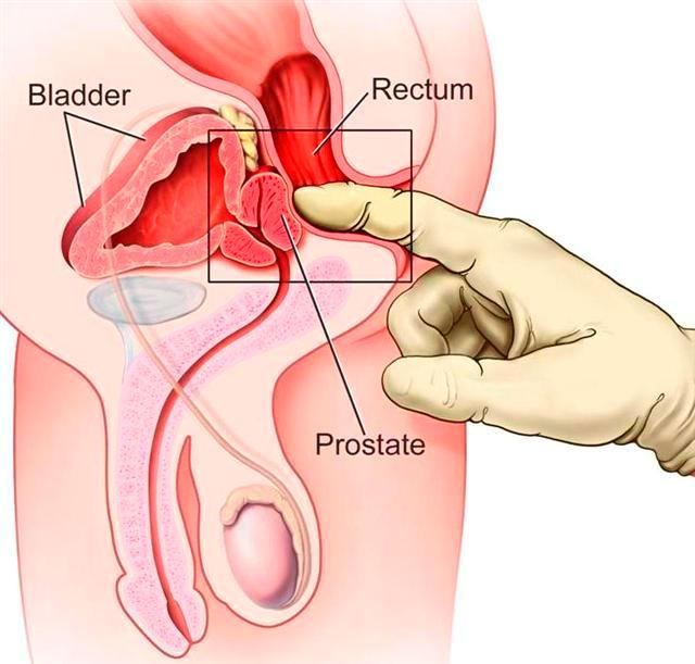 prosztatarák és tünetei