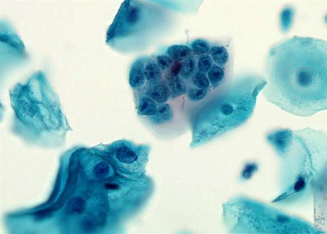 A betegség Trichomonas jelei